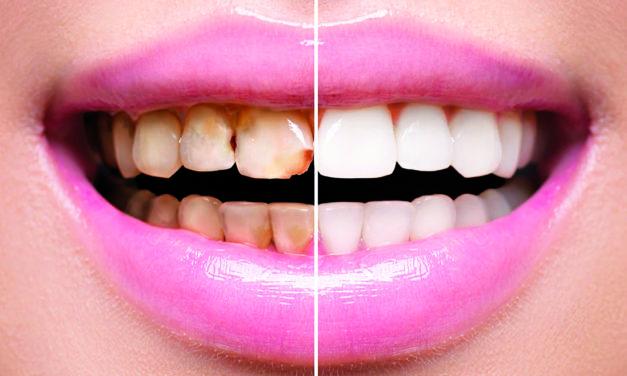 Regalatevi un nuovo sorriso grazie alle faccette dentali!